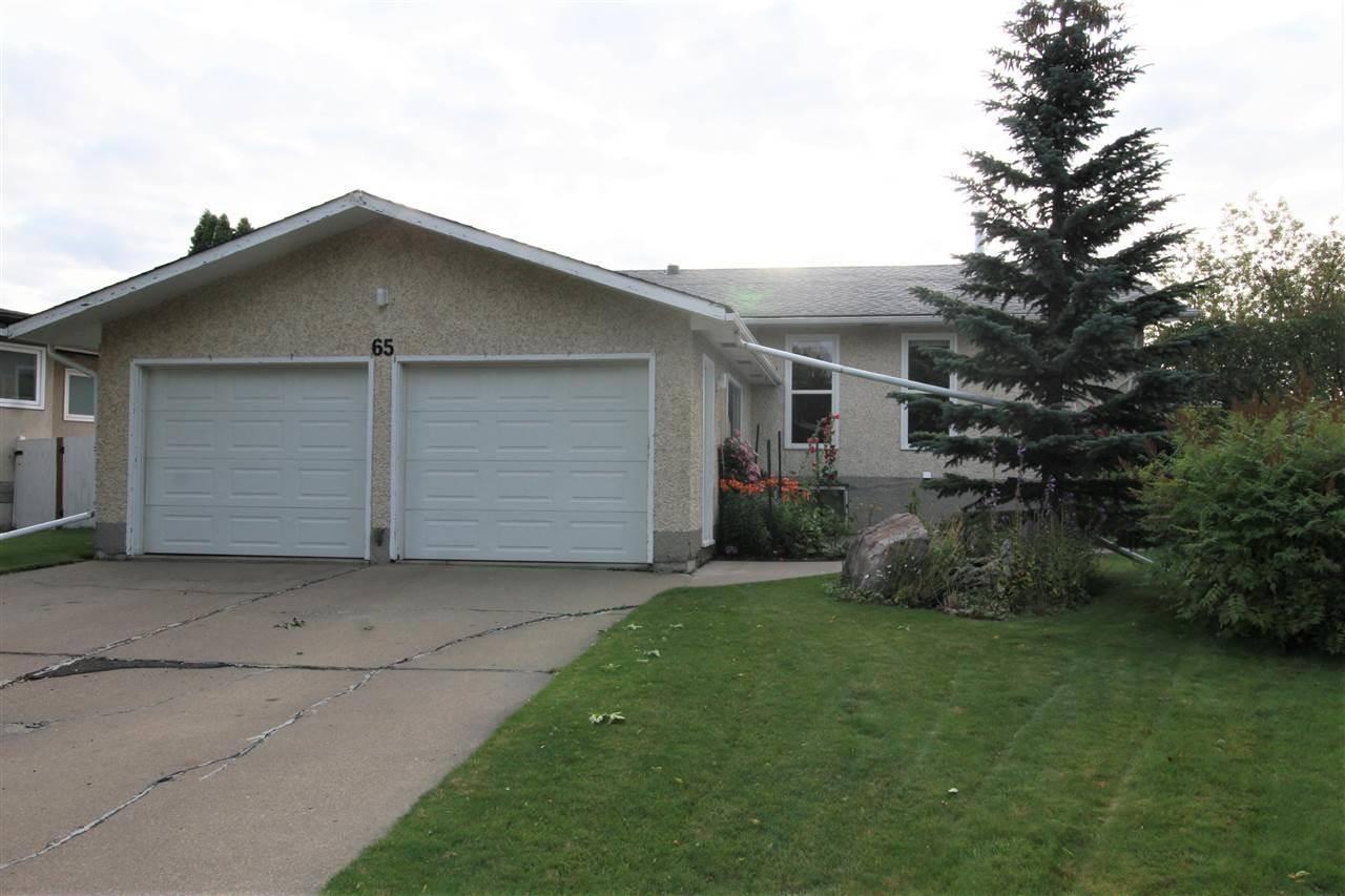 House for sale at 65 Haida Ave Leduc Alberta - MLS: E4170119